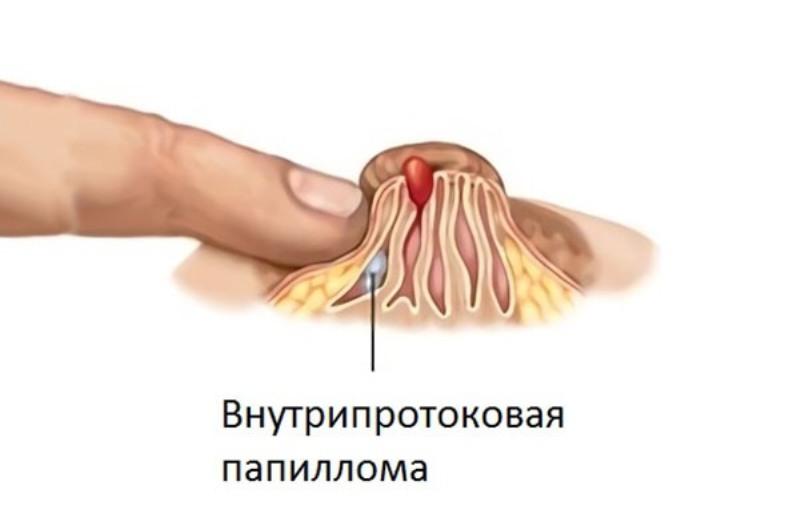 Внутрипротоковая папиллома молочной железы операция 1
